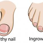 巻き爪・外反母趾・内反小趾の施術について